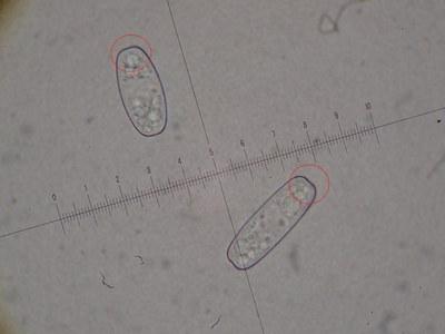 Sporen von Sarcoscypha austriaca (x1000)